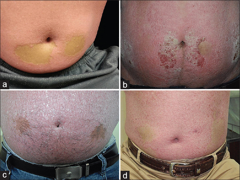 Figure�1:�Injection site sparing after subcutaneous biologics administration�(a) Case 1, secukinumab, after 4�weeks,�(b) Case 2, adalimumab, after 48�weeks,�(c) Case 3, etanercept, after 34�weeks, and�(d) Case 6, adalimumab, after 4�weeks