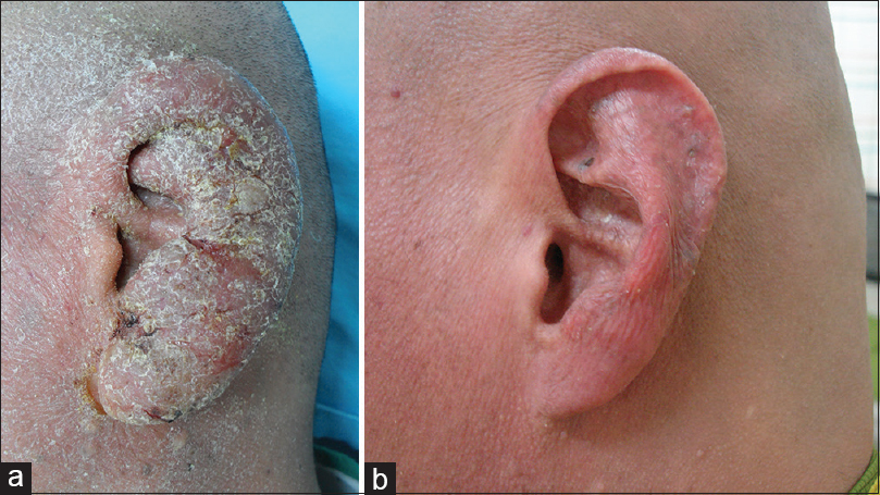 Figure 2: Treatment during the advanced stage of the disease improved symptoms, such as pain, itching, and hyperkeratosis. Before treatment, one patient experienced severe pain, itching, eczema, hyperkeratosis, and bleeding in the left ear (a). After radiotherapy, the lesion completely disappeared, and a posttreatment biopsy examination confirmed the absence of the previously present lymphoid infiltration. The patient was free of disease in the ear at the last follow-up visit (b)