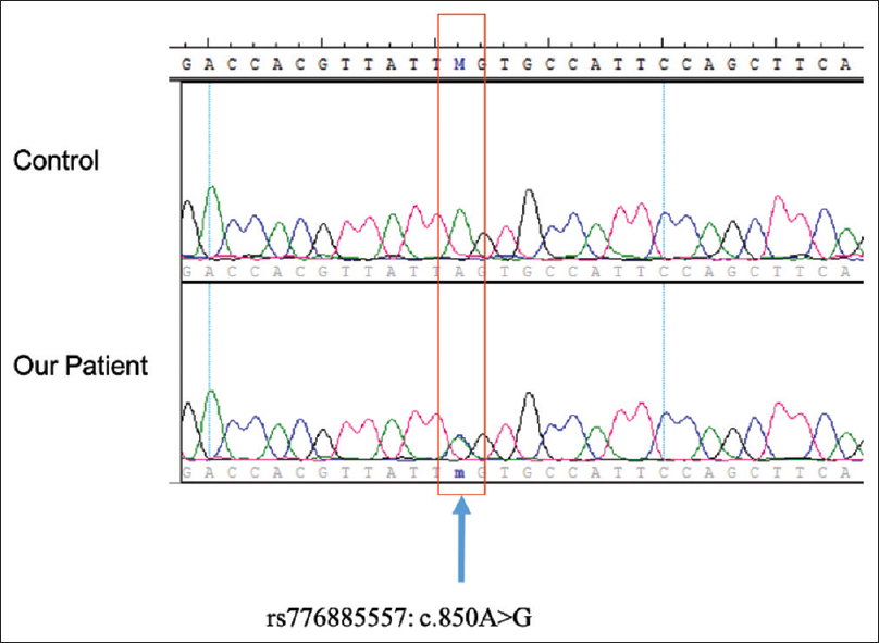 Figure 2: Mutation of c.850A>G in the protoporphyrinogen oxidase gene (the lower panel shows the patient's gene analysis) compared with the wild-type allele (top panel)